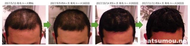 千葉県野田市 30代男性N様のAGA・薄毛の改善例コース6ヶ月間の途中経過