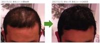 千葉県野田市 30代男性N様のAGA・薄毛の改善例コース開始前と6ヶ月後