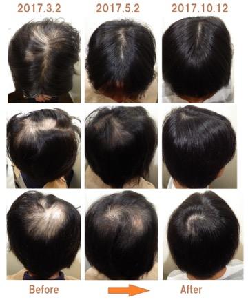 30代女性の薄毛改善実績