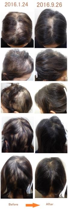 40代女性の薄毛改善実績1