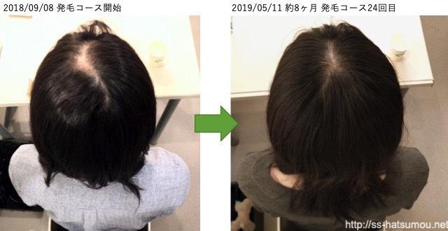 びまん性脱毛の20代女性の薄毛 発毛実績 埼玉県越谷市